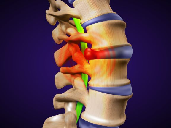 Herniated Disc or Bulging Disc In Neck